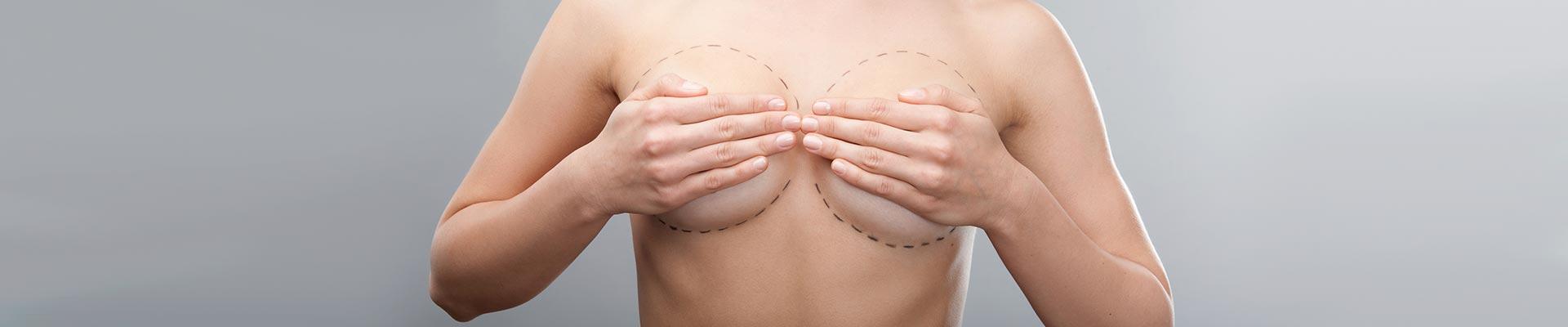 Mamoplastia de aumento – Prótese de Mama
